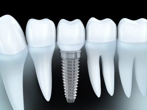 Dental implants in the 60655 area work to replace missing teeth. Learn from Dr. Joe McCartin reasons why they are the best tooth replacement options.